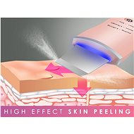 Beautyrelax Peel & lift - Ultrahangos bőrtisztító