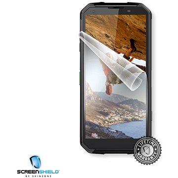 Screenshield IGET Blackview GBV9500 készülék kijelzőjére - Védőfólia