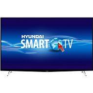 """65"""" Hyundai ULV 65TS300 SMART TV - Televízió"""